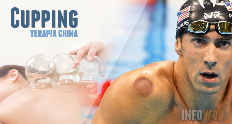 cupping-terapia-china-phelps-deporte-2