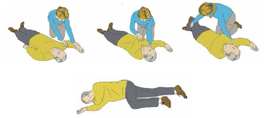 posicion-lateral-seguridad-primeros-auxilios