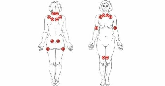 puntos-mas-comunes-fibromialgia